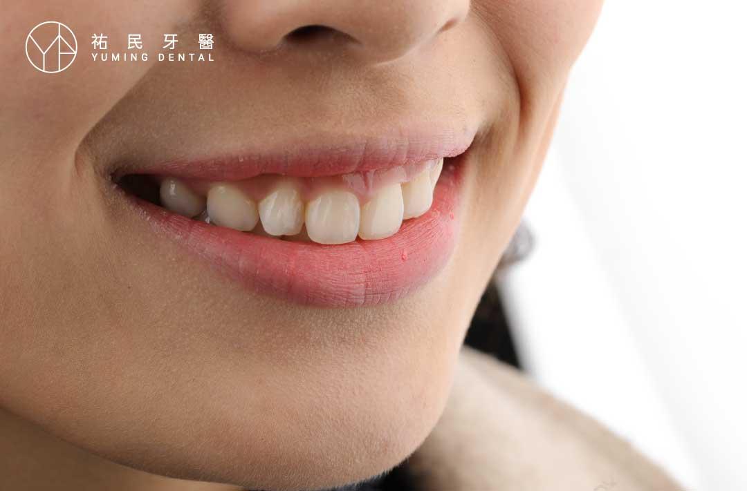 笑露牙齦讓微笑比例變得不好看,是很多人感到困擾的問題。