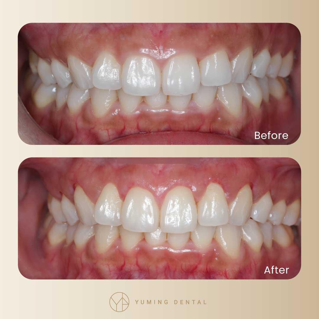 水雷射牙齦美容前後對比。手術過程中要修到「齒槽骨」,牙齦才不會又復長喔!