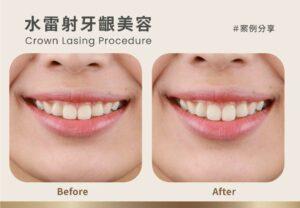 水雷射治療案例:笑露牙齦怎麼辦?牙冠增長術幫助重拾自信笑顏