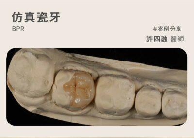 仿真瓷牙案例:職人美學精神 用完美齒雕重建健康牙齒