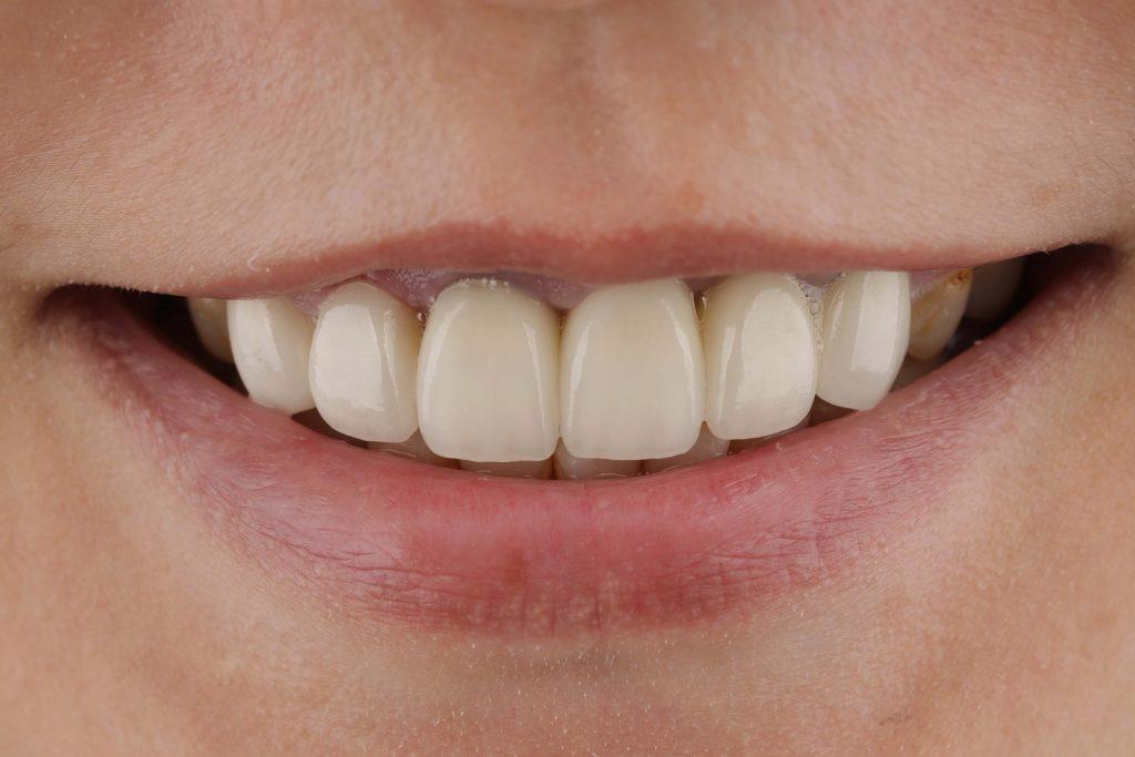完成全瓷冠假牙
