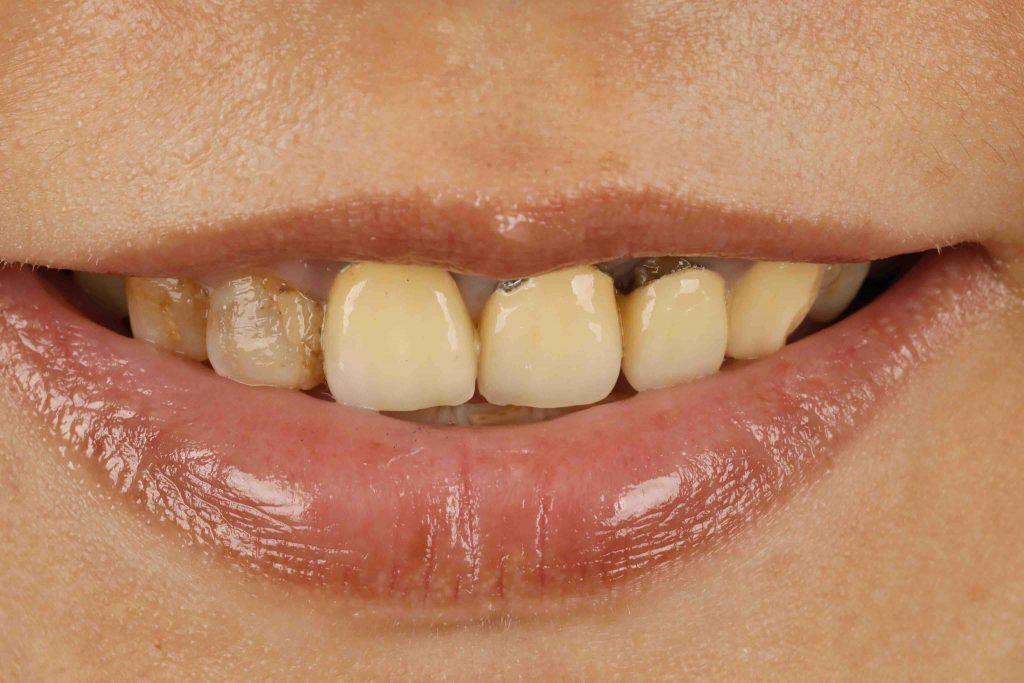 原先的金屬假牙