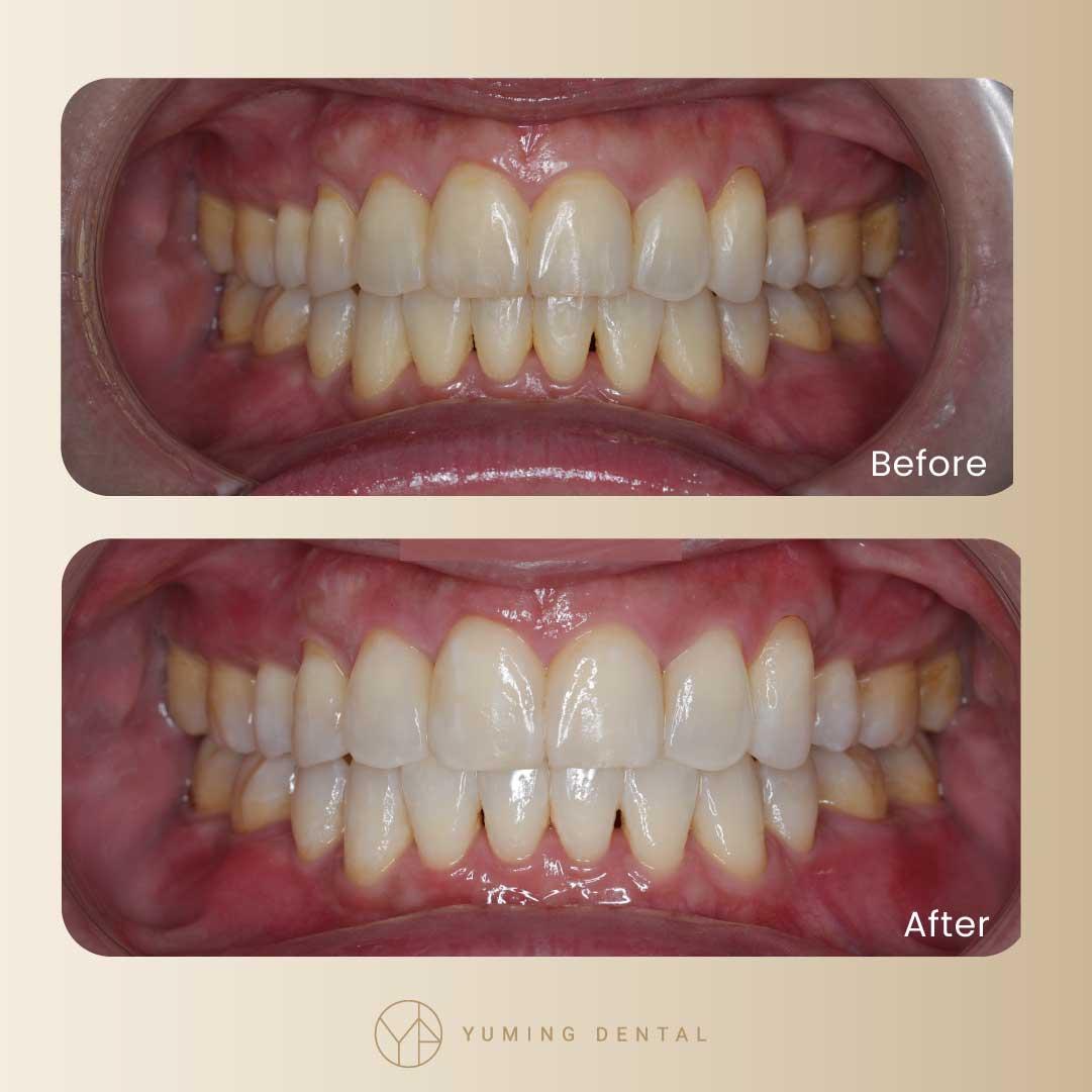 牙醫冷光美白的前後效果