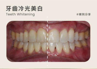牙醫冷光美白案例:午休冷光美白 1小時牙齒就能偷偷變白