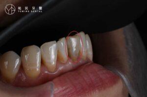 根管治療後,牙齒會變黑變暗