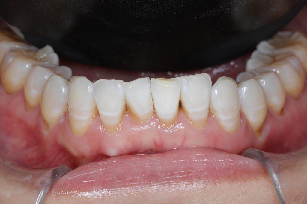 牙齒美白案例⟫變根管後牙齒變色?齒內美白還您亮白牙齒