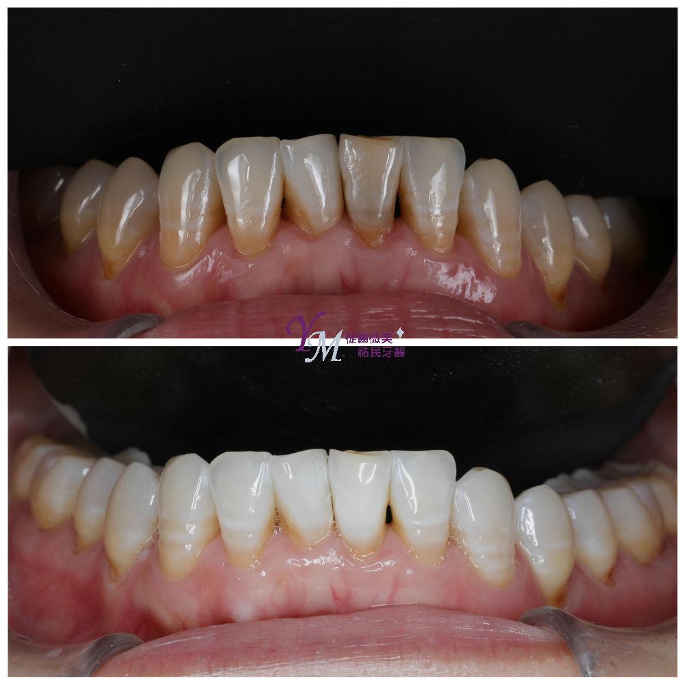 做完根管治療後,可進行齒內美白,將特殊美白劑放置於牙齒牙髓腔內2~5個禮拜,就能改善齒內暗沈。