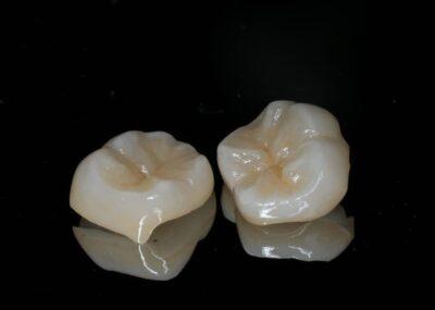 假牙材質大不同!金屬還是全瓷冠?教你如何挑選最適合的種類