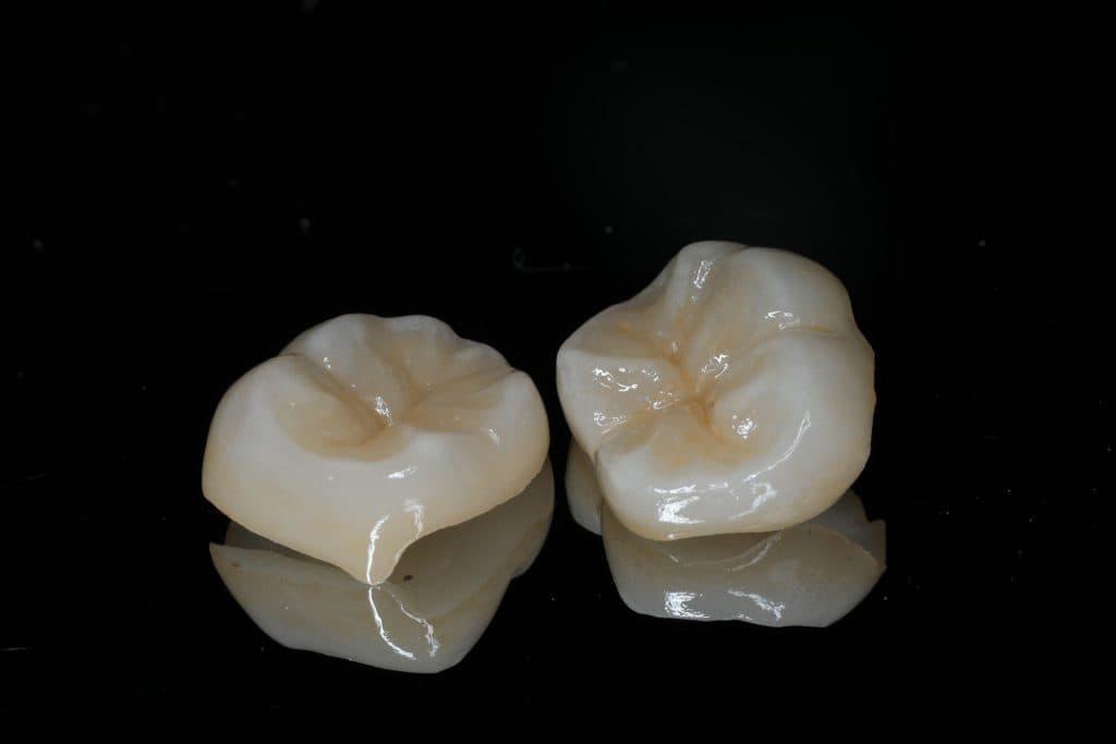 e-Max是當今最能和牙齒結合的材質,生物相容性最佳,硬度也適中,利用和牙齒珐瑯質同性質容易結合的原理,臨床上可以保留最多牙齒齒質。