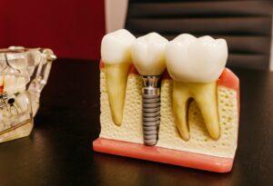 植牙的植體使用鈦金屬(CPTI),與人體骨骼有很好的生物相容性。