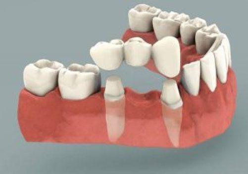 固定式假牙牙橋,需使用相鄰的兩顆健康牙,進行修磨調整