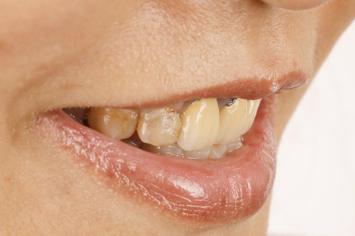 原先的假牙變得泛黃,還露出金屬暗影,讓原本的微笑大打折扣。