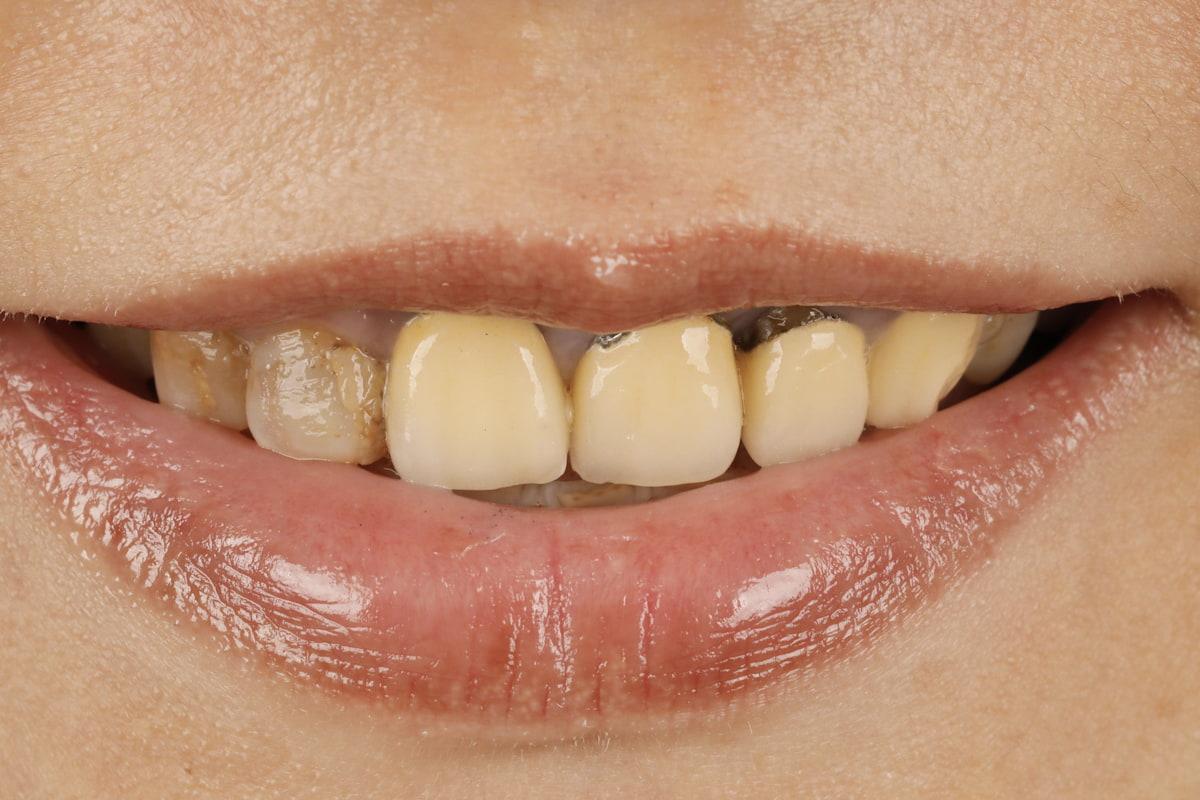 「金屬燒瓷」前牙假牙露出黑影,右排第2、3顆粗糙泛黃,讓笑容看起來不夠年輕亮麗。