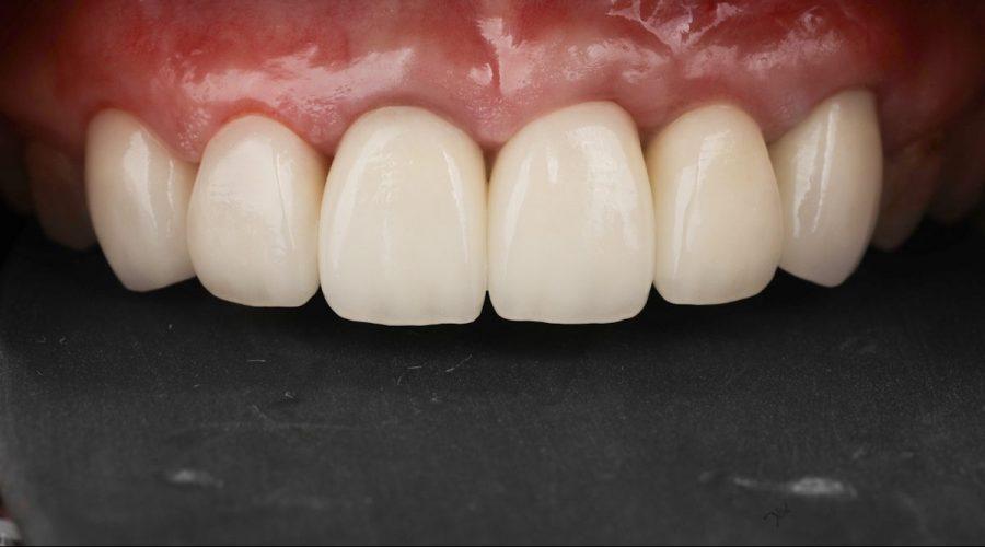 楊醫師為孟小姐設計最適合他的前牙形狀、長度、曲線,成果是不是美得令人讚嘆呢!