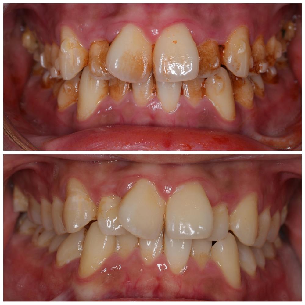 此案例,因為嚼食檳榔,牙齒外有檳榔渣的色素殘留,可經由噴砂美白改善。