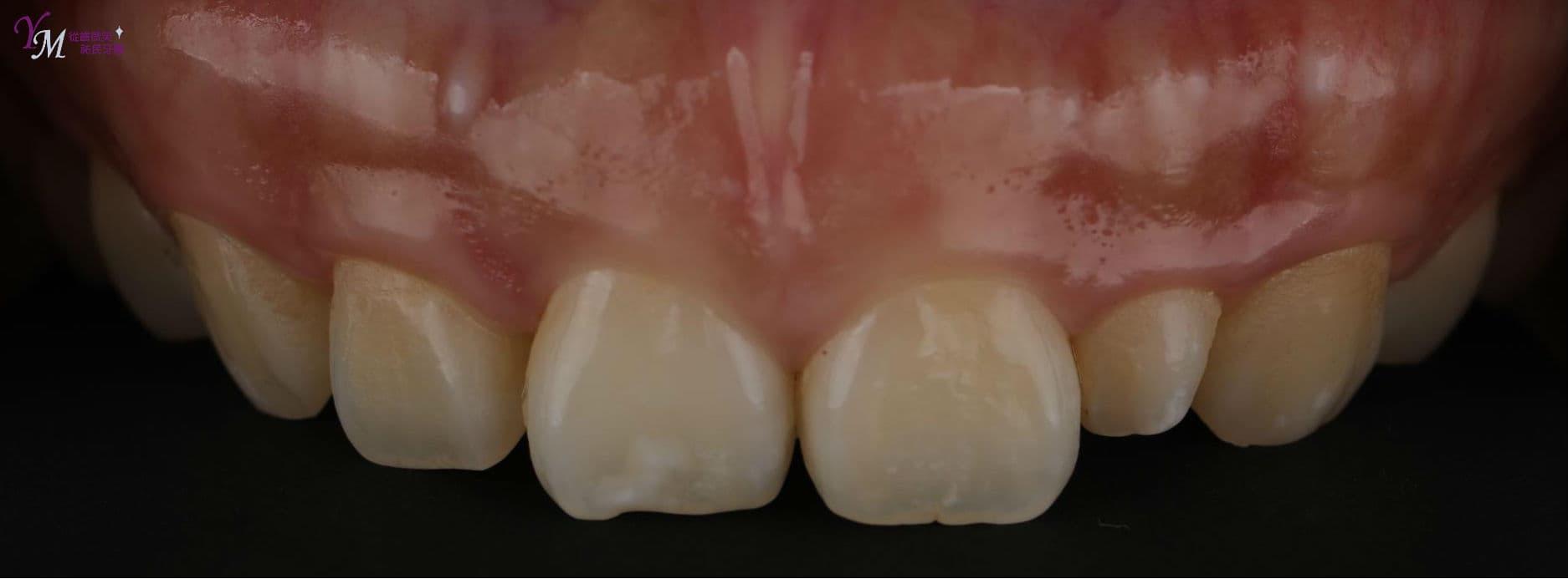 我們可以發現她的牙齒有這些地方可以改善:原本牙齒就偏小,而牙肉又過多,看起來比例不佳。