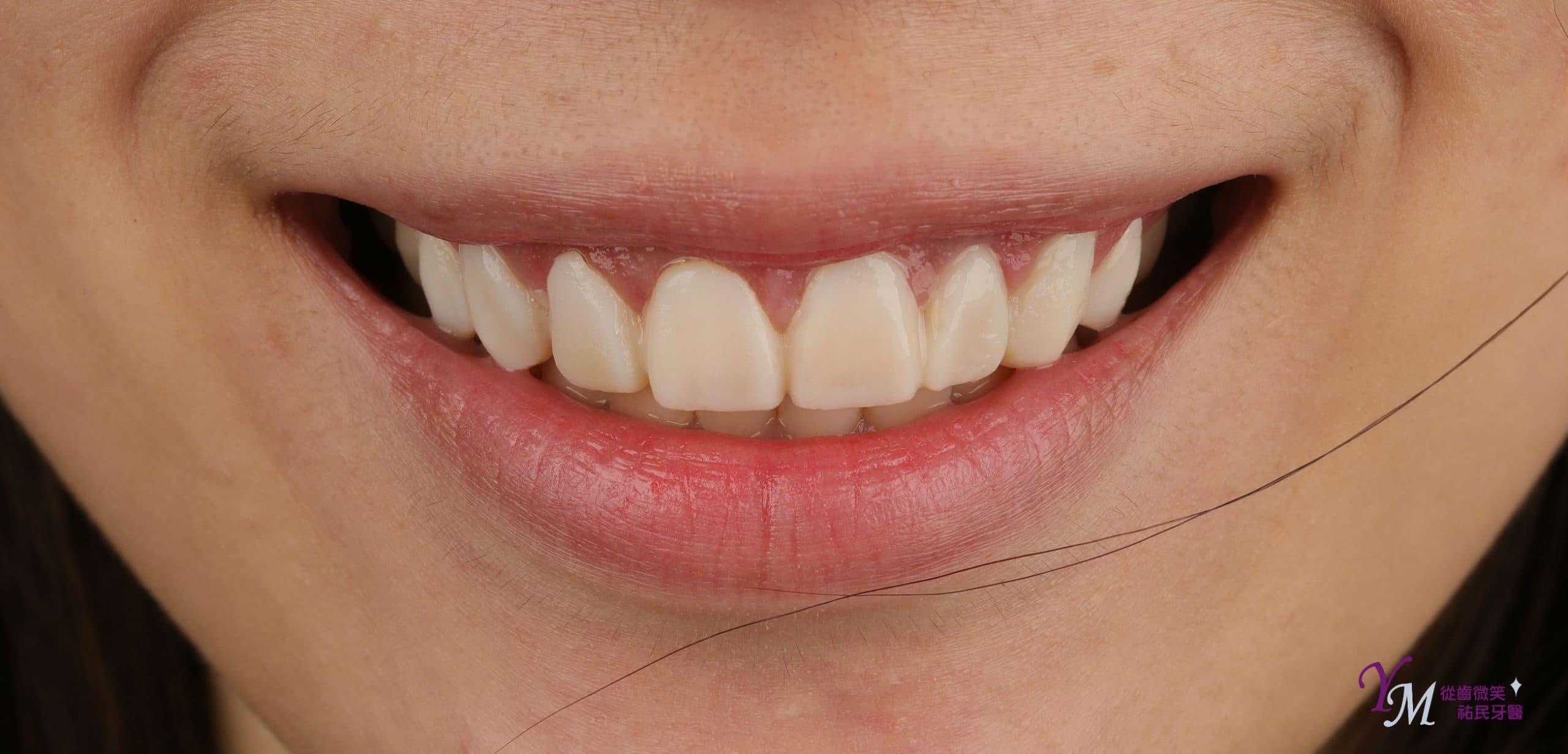 在正式裝上貼片或全瓷冠前,我們會先使用臨時假牙,看到實際設計的樣子,如果對於設計的樣子不滿意,還可以與醫師做最後一次的溝通修改,完全依個人喜好做客製需求。
