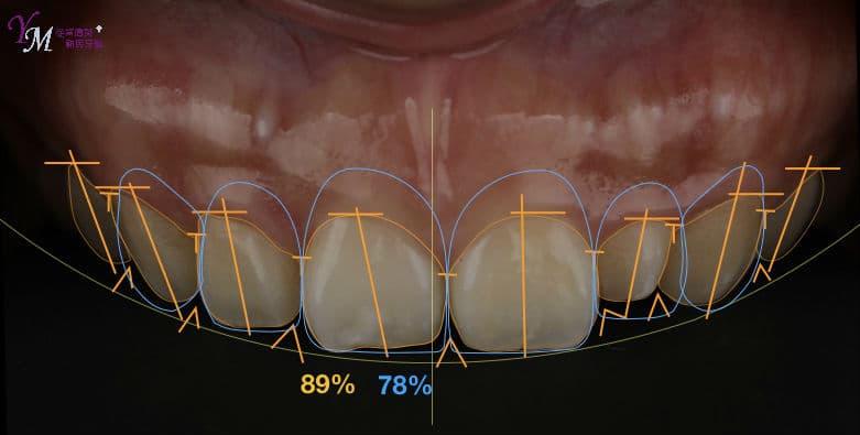 理想的微笑曲線,應該是上排牙齒邊緣貼和下唇邊緣,楊醫師依據他的唇形,以及牙齒大小、牙齦高度等等,做出適合高小姐的前牙美學。