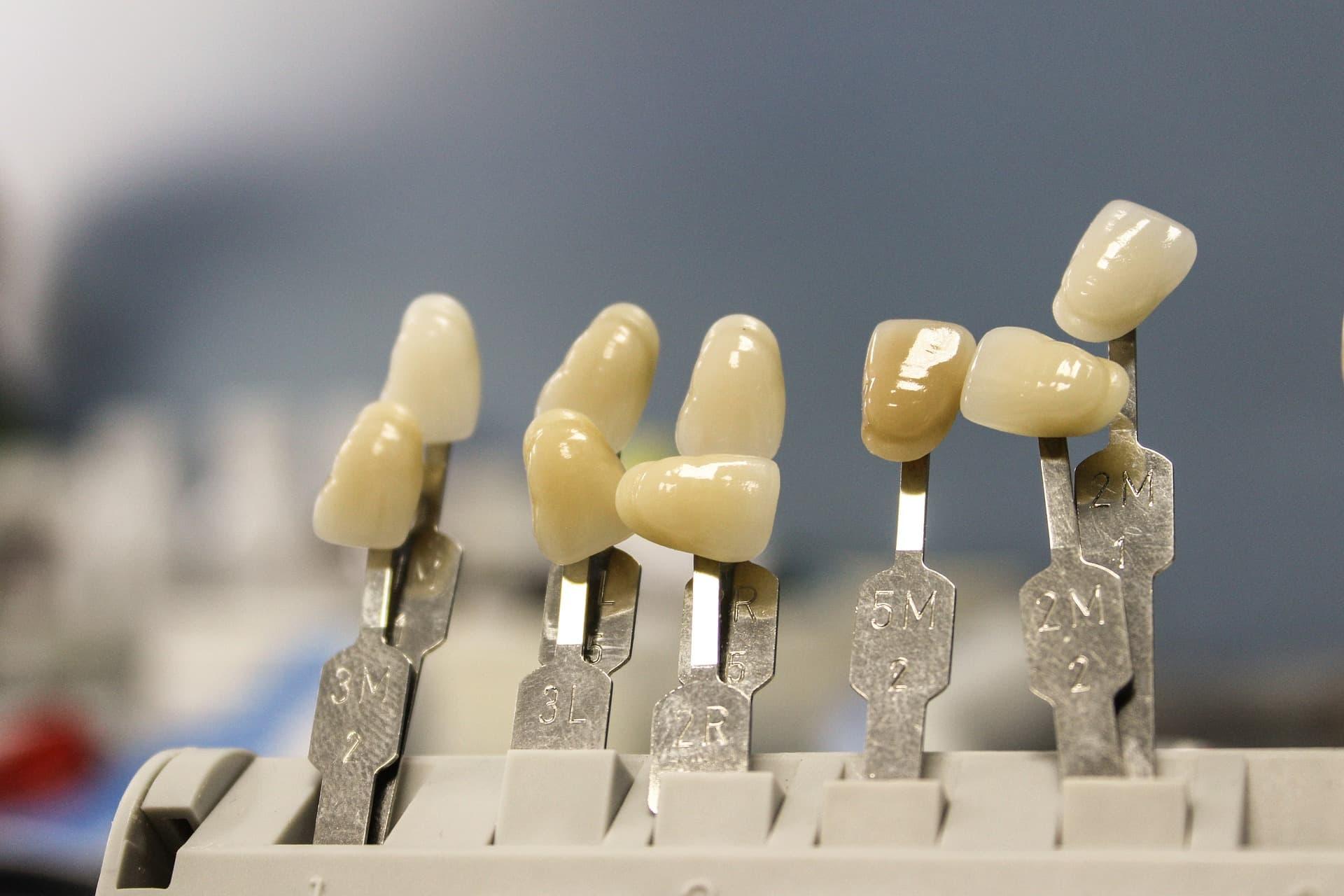 冷光美白可快速的提高牙齒的色階。(圖/Pixabay)