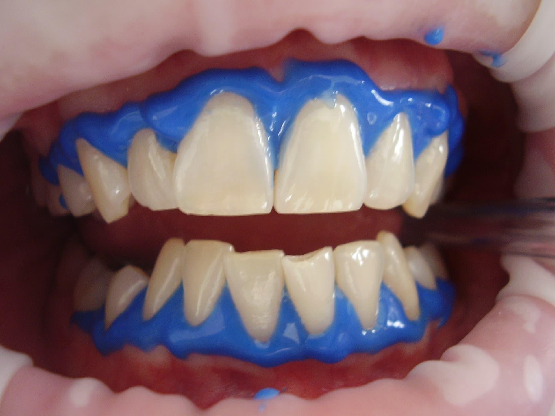 冷光美白的過程中會塗上牙齦保護劑,免於牙齦受到美白藥劑的刺激傷害。(圖/Pixabay)