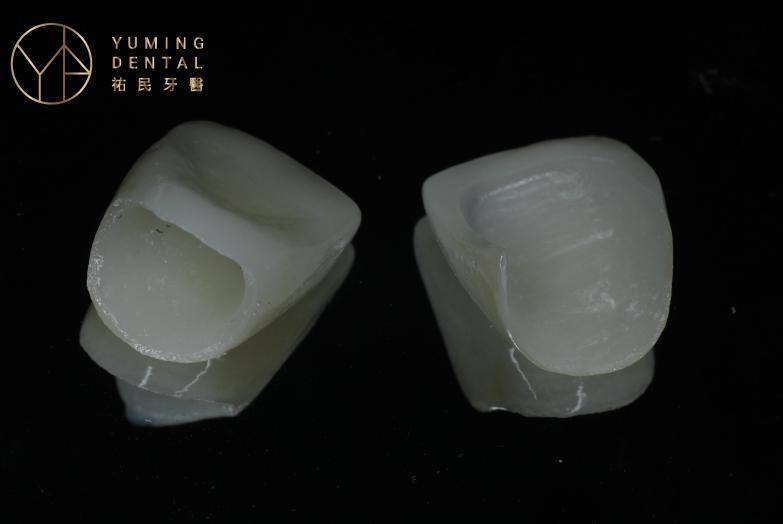 牙冠是裝在單顆牙齒上的假牙,全瓷冠假牙是牙冠材質最推薦的選擇