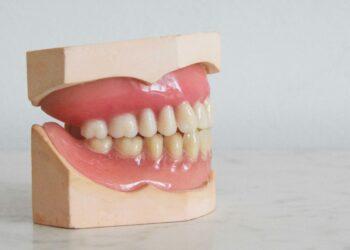 全口重建就是重新建立口腔的功能性與美觀,包括牙齒的外型、長度以及上下齒列的咬合關係。