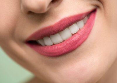 冷光美白價格、效果及注意事項!不可不知的牙齒美白全攻略