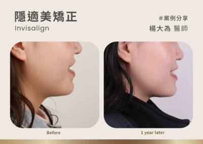 隱適美牙齒矯正臉型案例:打擊戽斗!創造美麗臉部線條