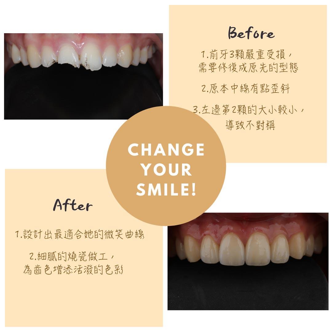 這次案例,因為車禍意外,導致門牙前面3顆斷裂受損,可以透過全瓷貼片來改變斷裂的牙齒。