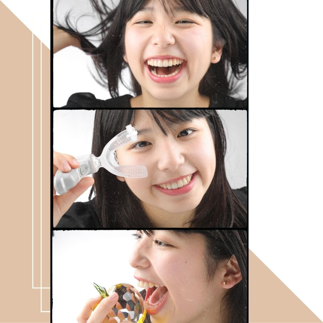 DSD微笑曲線設計,以及手工細膩的技師做的全瓷貼片,戴上全瓷貼片後就是煥然一新的笑容了!