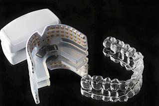 使用隱適美加速器,可以快速解決輕微暴牙矯正的問題
