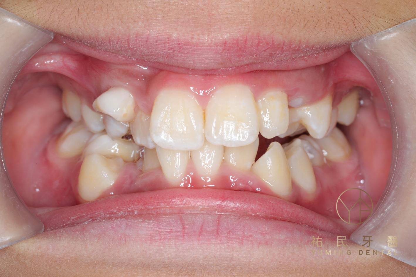 牙齒不整齊原因2.混合齒列:如果乳牙換牙不順利,恆牙就會發生萌發順序上的錯誤