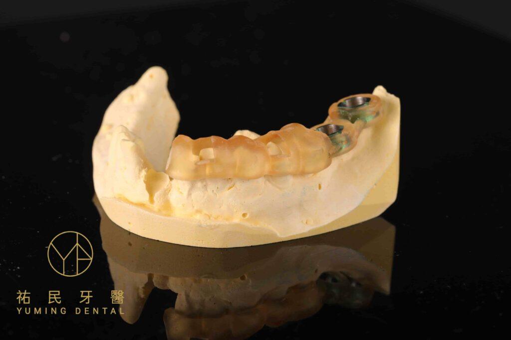 植牙流程中會需要導引板定位植體的正確位置
