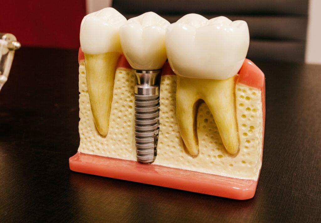 植牙流程有哪些?牙醫師解析不同部位植牙流程、優缺點比較