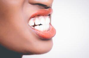 牙齒不整齊要矯正嗎?4個年齡階段影響原因介紹,避免齒列問題