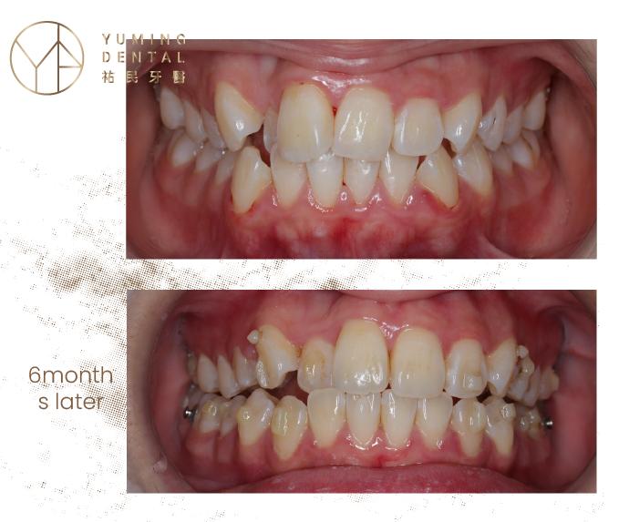 此案例在使用隱適美加速器6個月後,牙齒不整齊的情況就改善很多