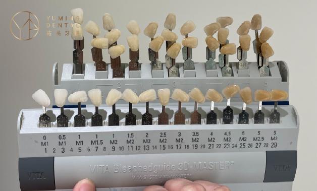 全瓷貼片可以依個人喜好、膚色搭配等等選擇喜愛的齒色。