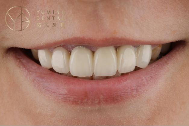 全瓷冠假牙有高度生物相容性,可以讓前牙呈現最美的外觀,是愛美人士的首選