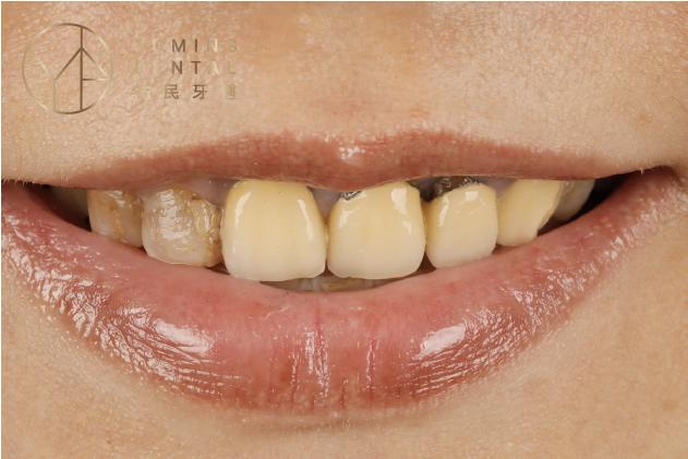 原先使用金屬假牙露出黑影,讓笑容看起來不夠年輕亮麗,可以使用全瓷冠假牙代替原先假牙,外觀會更亮眼
