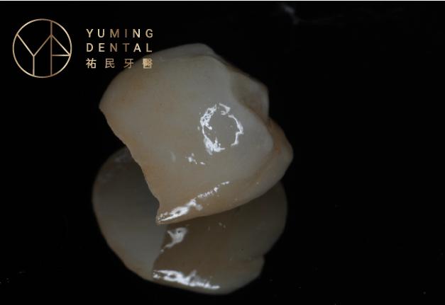 二氧化鋯全瓷冠假牙因為硬度高的特性,使用於後牙的全瓷冠假牙牙冠