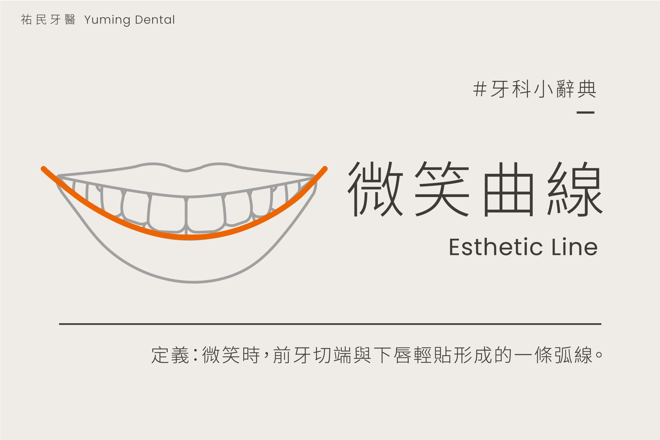 全瓷貼片也可以調整整體的微笑曲線,讓笑容比例更和諧完美