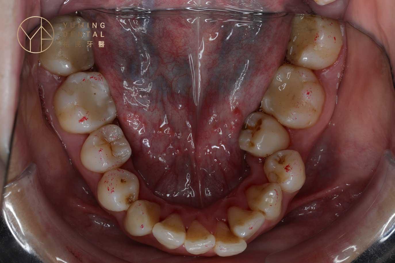 輕微暴牙矯正方式第四種就是解決牙齒的干擾:此案例的第二小臼齒因為傾倒,干擾了其他牙齒的排列。