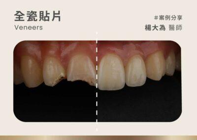 全瓷美白貼片案例:精心DSD微笑設計 創作出如精品般的笑容