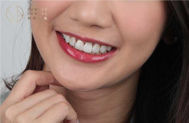 如果沒有特別牙齒不整齊,才會建議直接做全瓷貼片