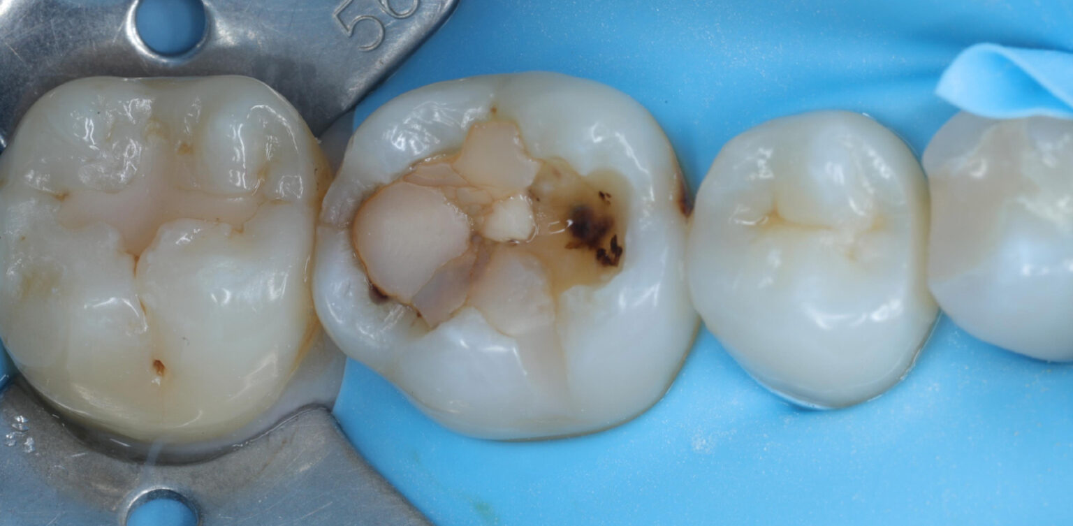 完成仿真瓷牙療程